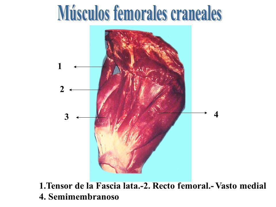 1 2 3 1.Tensor de la Fascia lata.-2. Recto femoral.- Vasto medial 4. Semimembranoso 4