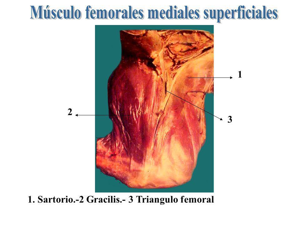 1 2 3 1. Sartorio.-2 Gracilis.- 3 Triangulo femoral