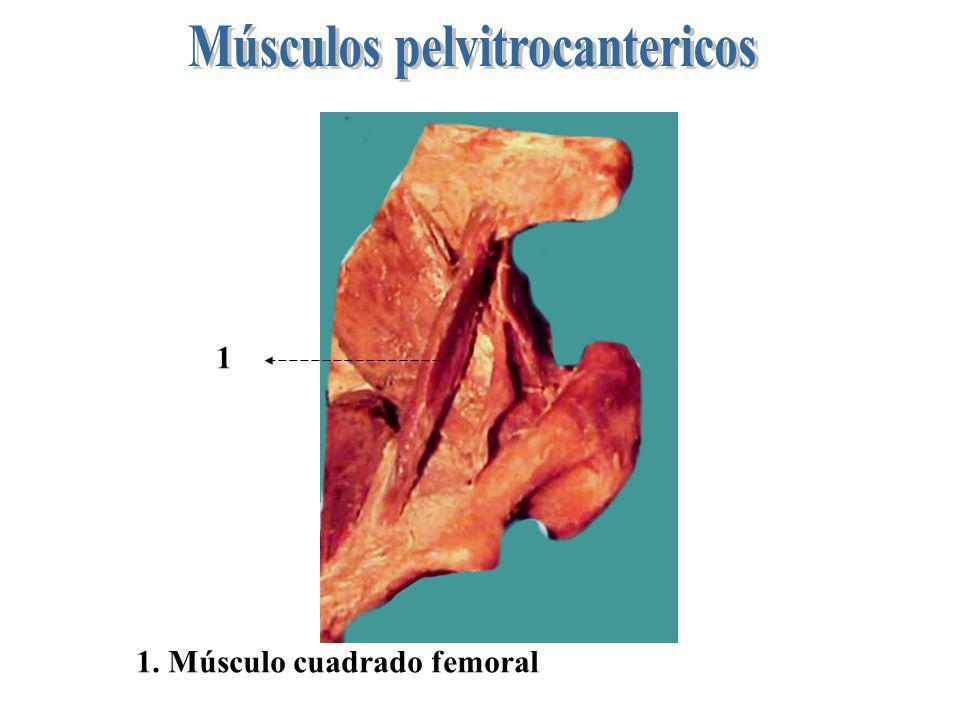 1 1. Músculo cuadrado femoral