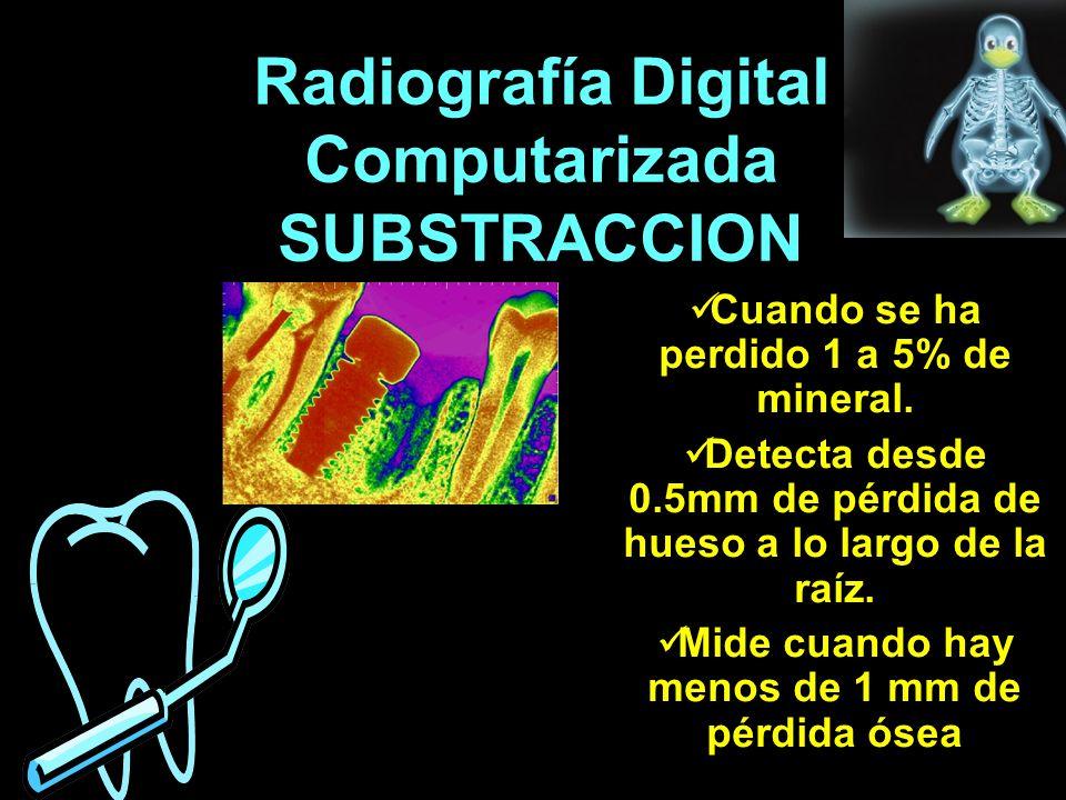 Radiografía Digital Computarizada SUBSTRACCION Cuando se ha perdido 1 a 5% de mineral. Detecta desde 0.5mm de pérdida de hueso a lo largo de la raíz.