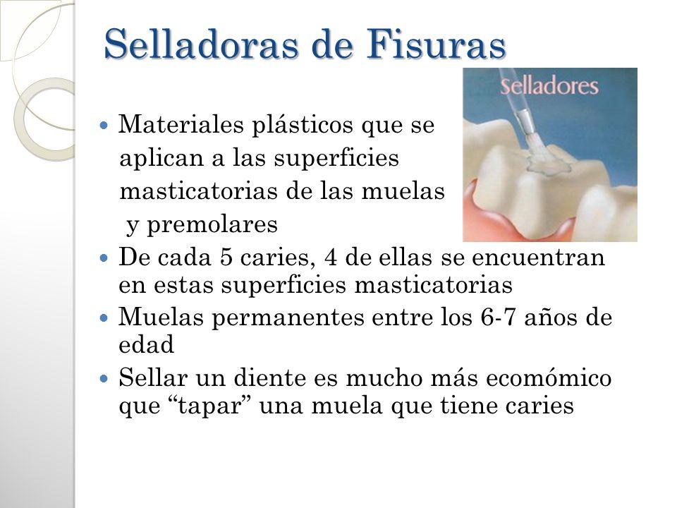 Selladoras de Fisuras Materiales plásticos que se aplican a las superficies masticatorias de las muelas y premolares De cada 5 caries, 4 de ellas se e