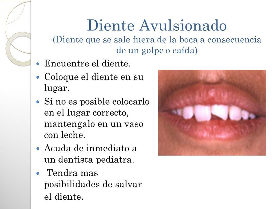 ) Diente Avulsionado (Diente que se sale fuera de la boca a consecuencia de un golpe o caída) Encuentre el diente. Coloque el diente en su lugar. Si n