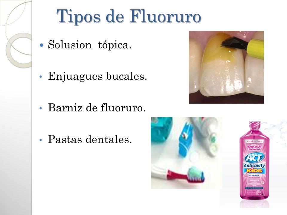 Tipos de Fluoruro Tipos de Fluoruro Solusion tópica. Enjuagues bucales. Barniz de fluoruro. Pastas dentales.