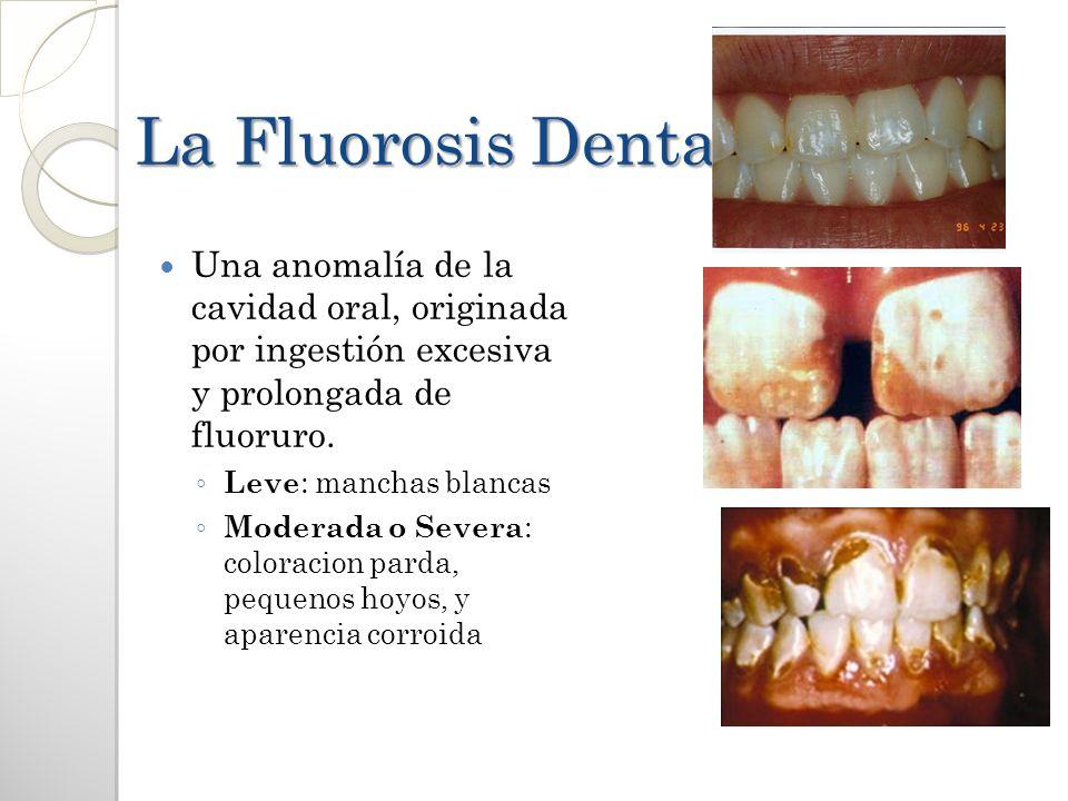 La Fluorosis Dental Una anomalía de la cavidad oral, originada por ingestión excesiva y prolongada de fluoruro. Leve : manchas blancas Moderada o Seve