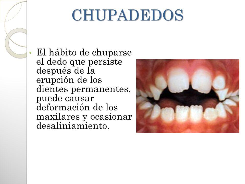 CHUPADEDOS CHUPADEDOS El hábito de chuparse el dedo que persiste después de la erupción de los dientes permanentes, puede causar deformación de los ma