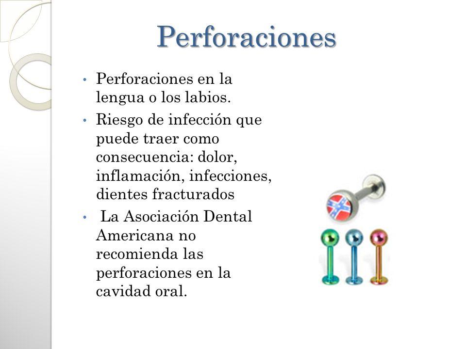 Perforaciones Perforaciones Perforaciones en la lengua o los labios. Riesgo de infección que puede traer como consecuencia: dolor, inflamación, infecc
