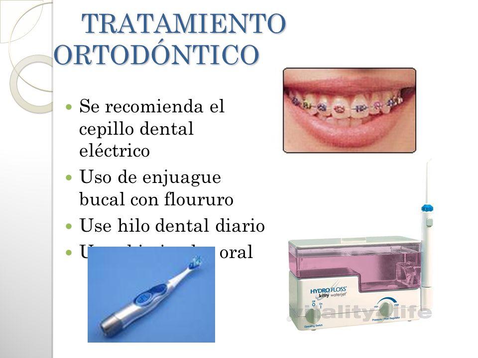 TRATAMIENTO ORTODÓNTICO TRATAMIENTO ORTODÓNTICO Se recomienda el cepillo dental eléctrico Uso de enjuague bucal con floururo Use hilo dental diario Us