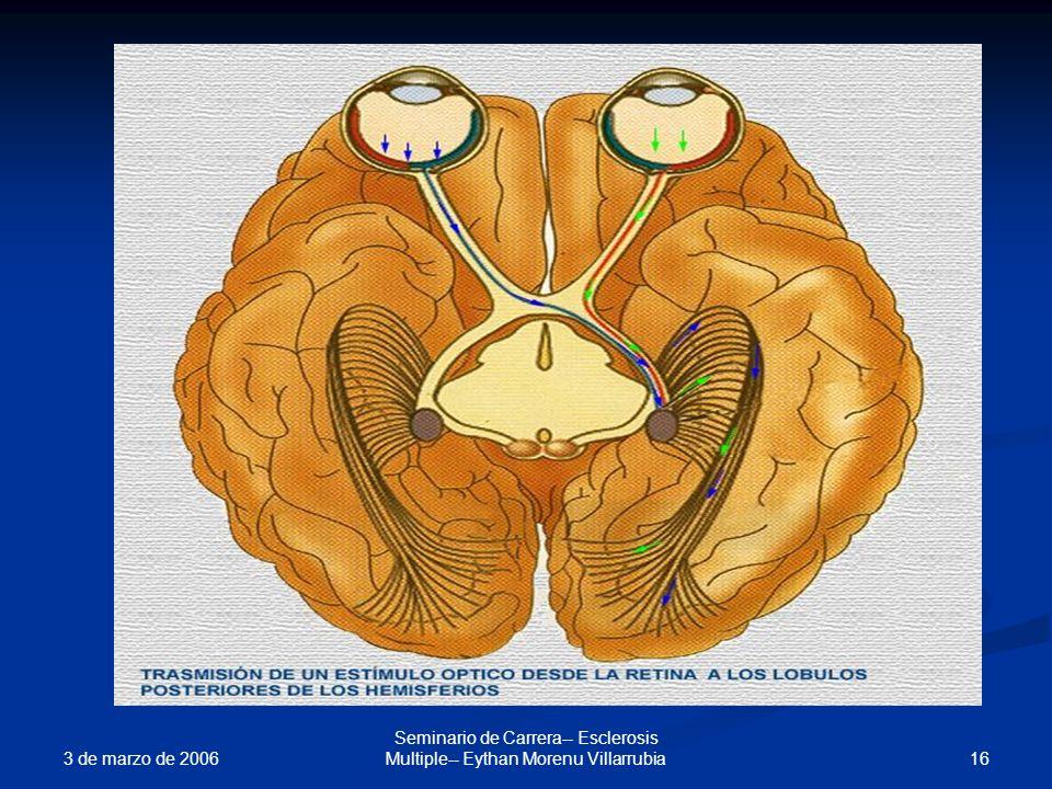 3 de marzo de 2006 16 Seminario de Carrera-- Esclerosis Multiple-- Eythan Morenu Villarrubia