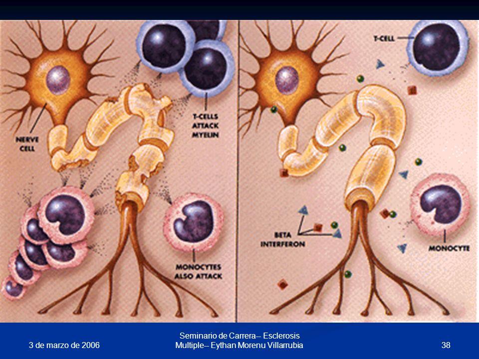3 de marzo de 2006 38 Seminario de Carrera-- Esclerosis Multiple-- Eythan Morenu Villarrubia