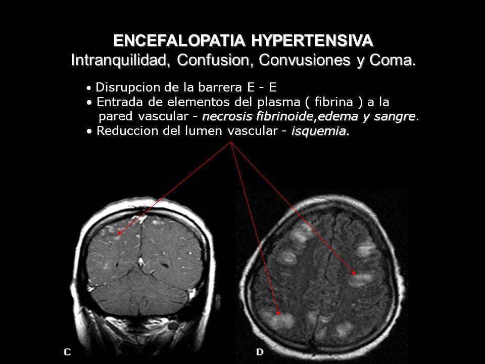 ENCEFALOPATIA HYPERTENSIVA Intranquilidad, Confusion, Convusiones y Coma. Disrupcion de la barrera E - E Entrada de elementos del plasma ( fibrina ) a