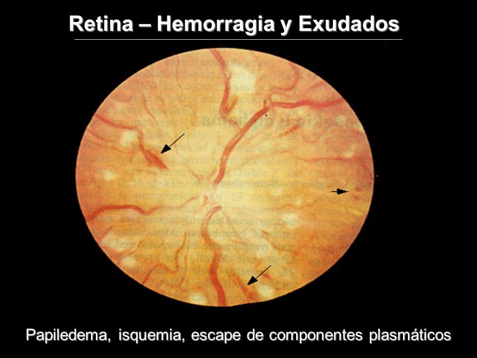 Papiledema, isquemia, escape de componentes plasmáticos Retina – Hemorragia y Exudados