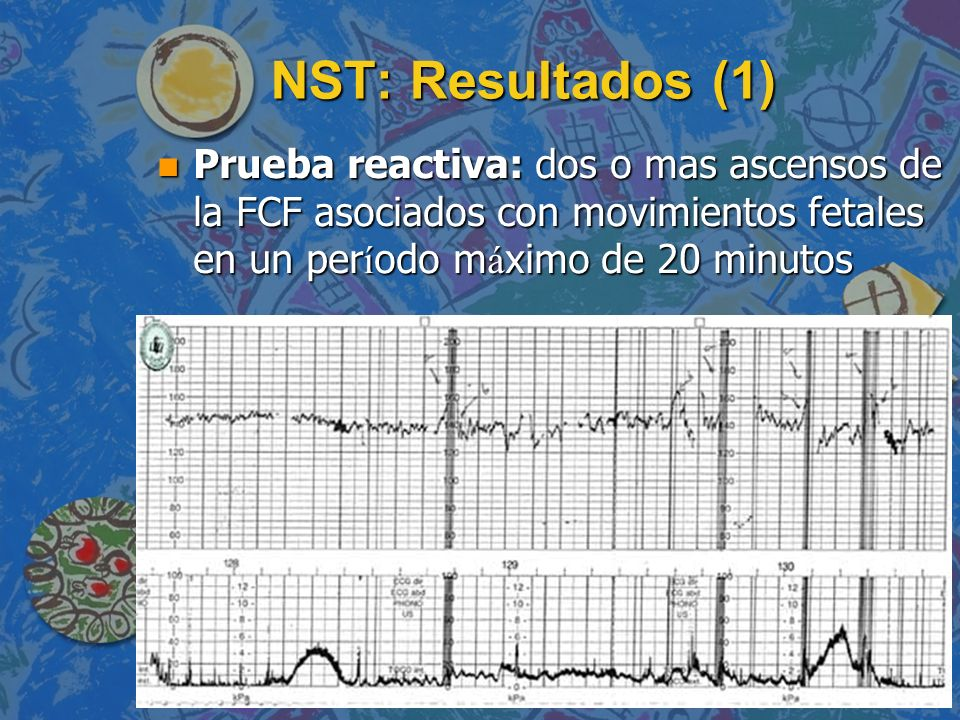 NST: Resultados (1) Prueba reactiva: dos o mas ascensos de la FCF asociados con movimientos fetales en un per í odo m á ximo de 20 minutos Prueba reac