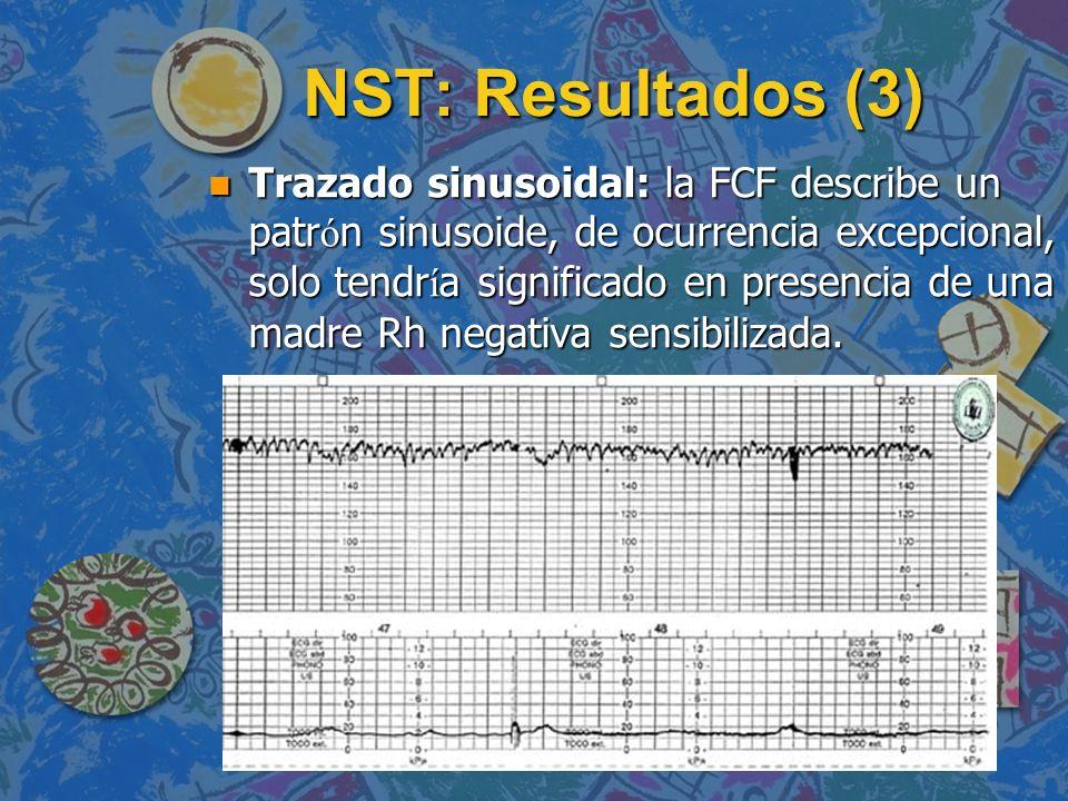 NST: Resultados (3) Trazado sinusoidal: la FCF describe un patr ó n sinusoide, de ocurrencia excepcional, solo tendr í a significado en presencia de u