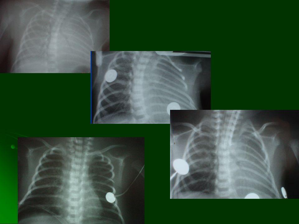 VENTILACION DE ALTA FRECUENCIA RECOMENDACIONN° No se recomienda el uso de ventilación de alta frecuencia en el tratamiento de prematuros con enfermeda