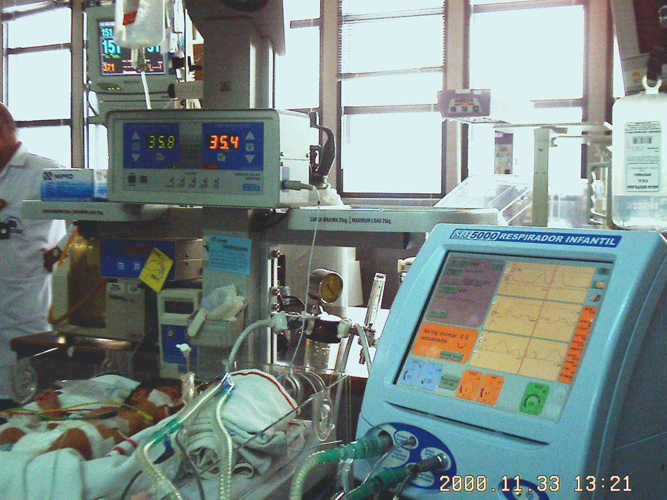COMPLICACIONES Hemorragia pulmonar Hemorragia pulmonar Escapes de aire Escapes de aire Persistencia del conducto arterioso Persistencia del conducto a