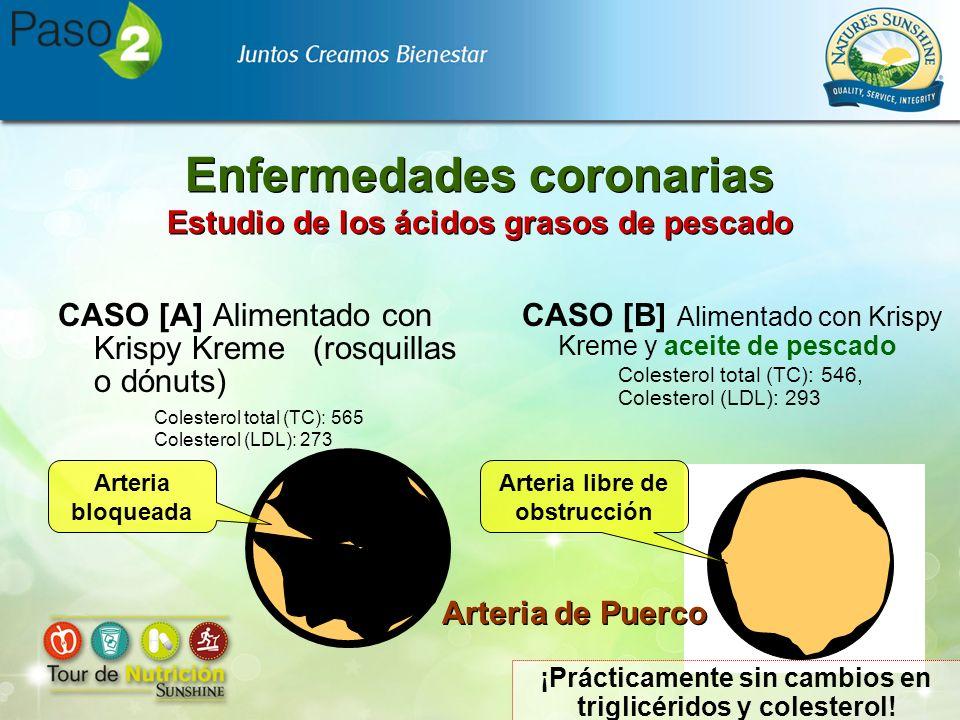 Enfermedades coronarias Estudio de los ácidos grasos de pescado CASO [A] Alimentado con Krispy Kreme (rosquillas o dónuts) Colesterol total (TC): 565