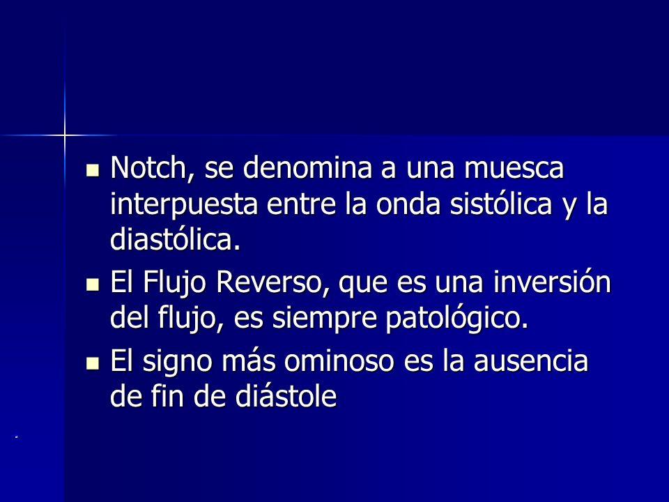 Notch, se denomina a una muesca interpuesta entre la onda sistólica y la diastólica. Notch, se denomina a una muesca interpuesta entre la onda sistóli