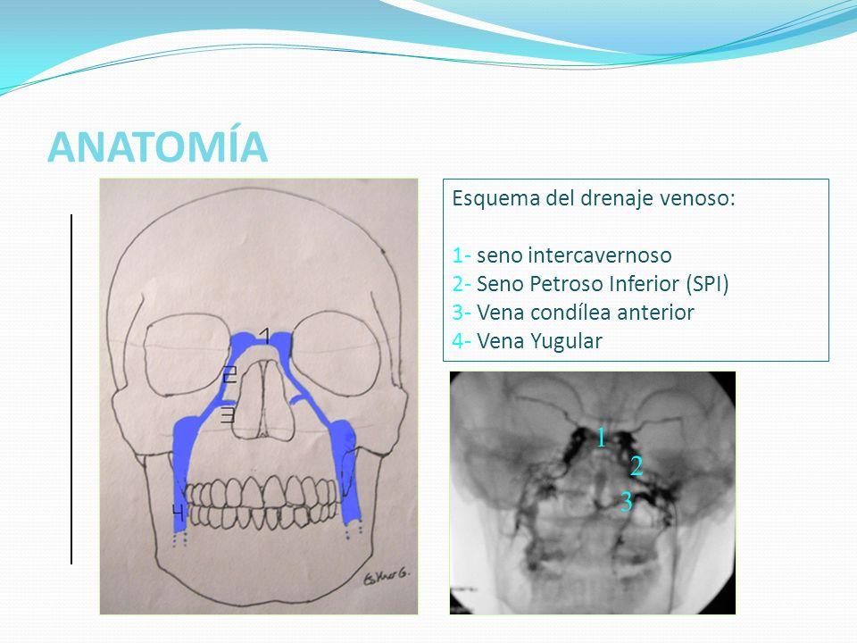 ANATOMÍA Visión lateral del drenaje venoso cerebral: 1.- seno longitudinal superior 2.- seno longitudinal inferior 3.- seno recto 4.- seno sigmoide 5.- seno petroso superior 6.- seno petroso inferior 7.- seno cavernoso