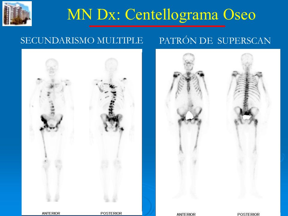 MN Dx: Centellograma Oseo SECUNDARISMO MULTIPLE PATRÓN DE SUPERSCAN