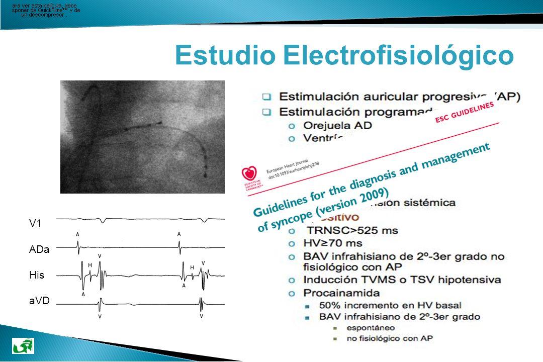 Enfermedad del Sistema His-Purkinje HV>70 ms Atrial Pacing (AP) + Test de Procainamida (PA) +