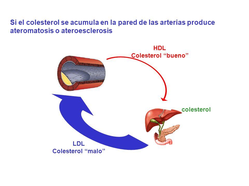 colesterol LDL Colesterol malo HDL Colesterol bueno Si el colesterol se acumula en la pared de las arterias produce ateromatosis o ateroesclerosis