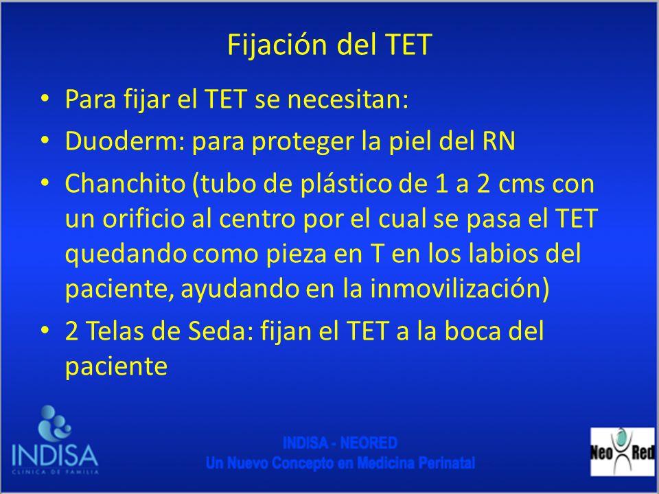 Fijación del TET Para fijar el TET se necesitan: Duoderm: para proteger la piel del RN Chanchito (tubo de plástico de 1 a 2 cms con un orificio al cen