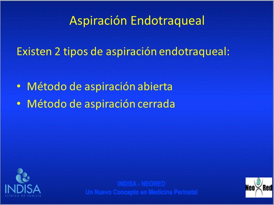 Aspiración Endotraqueal Existen 2 tipos de aspiración endotraqueal: Método de aspiración abierta Método de aspiración cerrada