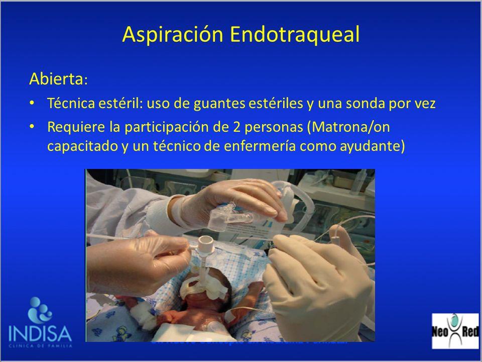 Aspiración Endotraqueal Abierta : Técnica estéril: uso de guantes estériles y una sonda por vez Requiere la participación de 2 personas (Matrona/on ca