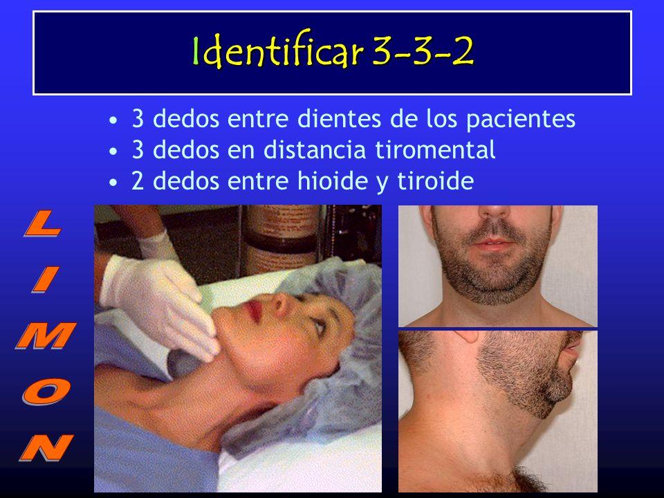 Identificar 3-3-2 3 dedos entre dientes de los pacientes 3 dedos en distancia tiromental 2 dedos entre hioide y tiroide
