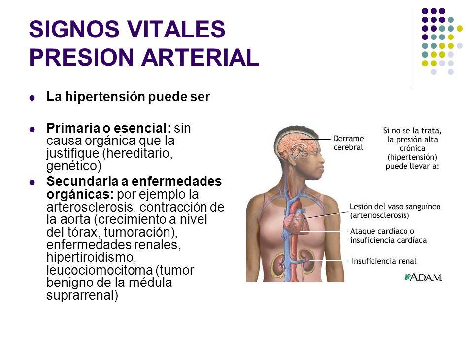 SIGNOS VITALES PRESION ARTERIAL HIPERTENSIÓN ARTERIAL (HTA) (HTA) HIPERTENSIÓN ARTERIAL: tiene cifras de tensión arterial sistólica de 160 mmHg o mayo