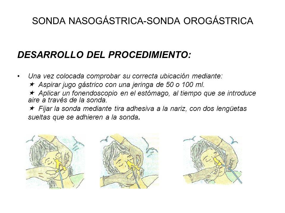 SONDA NASOGÁSTRICA-SONDA OROGÁSTRICA DESARROLLO DEL PROCEDIMIENTO: Una vez colocada comprobar su correcta ubicación mediante: Aspirar jugo gástrico co