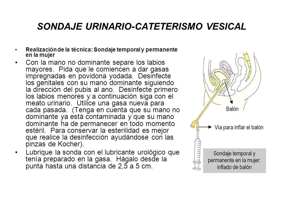 SONDAJE URINARIO-CATETERISMO VESICAL Realización de la técnica: Sondaje temporal y permanente en la mujer Con la mano no dominante separe los labios m
