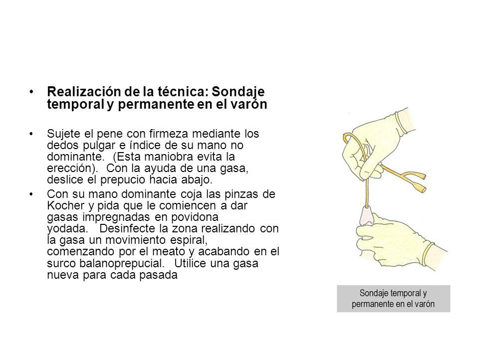 Realización de la técnica: Sondaje temporal y permanente en el varón Sujete el pene con firmeza mediante los dedos pulgar e índice de su mano no domin