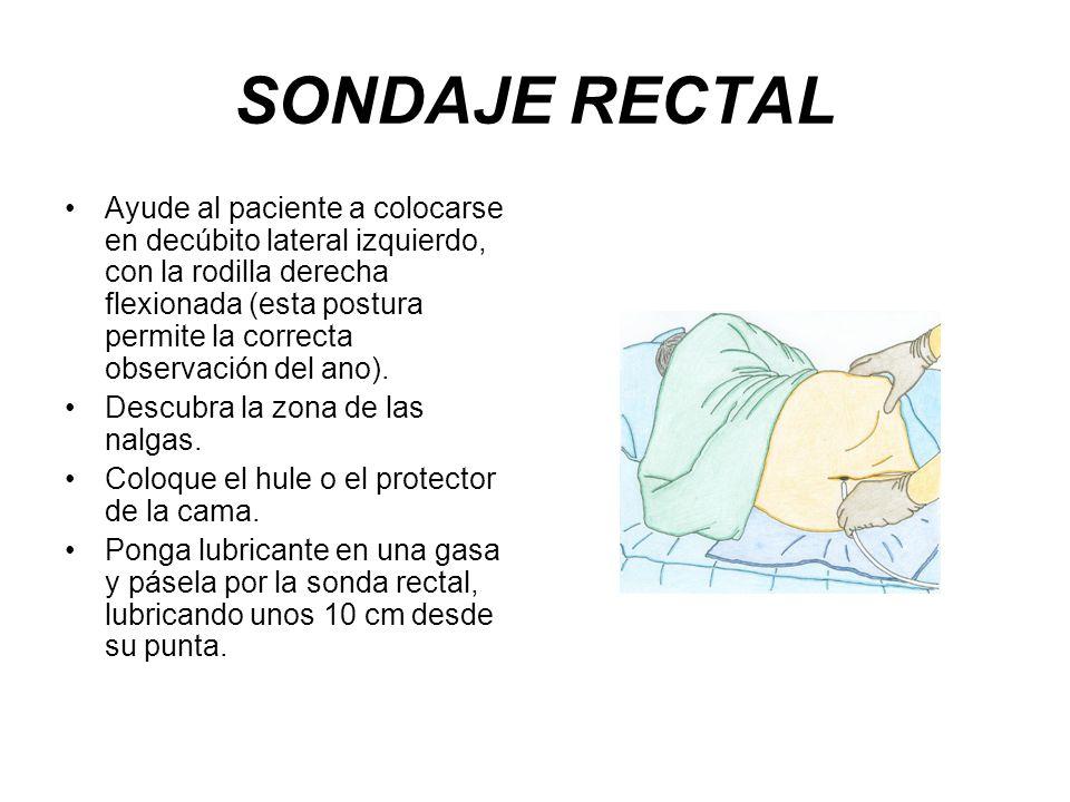 SONDAJE RECTAL Ayude al paciente a colocarse en decúbito lateral izquierdo, con la rodilla derecha flexionada (esta postura permite la correcta observ