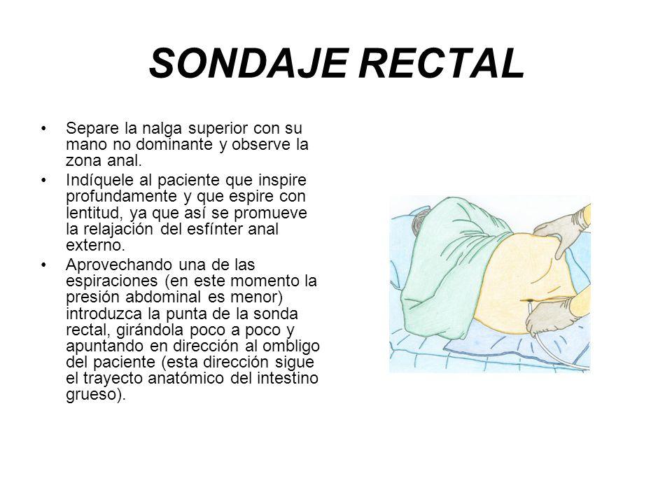 SONDAJE RECTAL Separe la nalga superior con su mano no dominante y observe la zona anal. Indíquele al paciente que inspire profundamente y que espire
