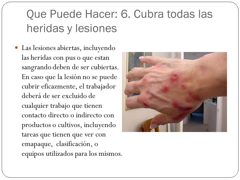 Que Puede Hacer: 6. Cubra todas las heridas y lesiones Las lesiones abiertas, incluyendo las heridas con pus o que estan sangrando deben de ser cubier