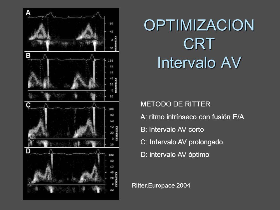 OPTIMIZACION CRT Intervalo AV METODO DE RITTER A: ritmo intrínseco con fusión E/A B: Intervalo AV corto C: Intervalo AV prolongado D: intervalo AV ópt