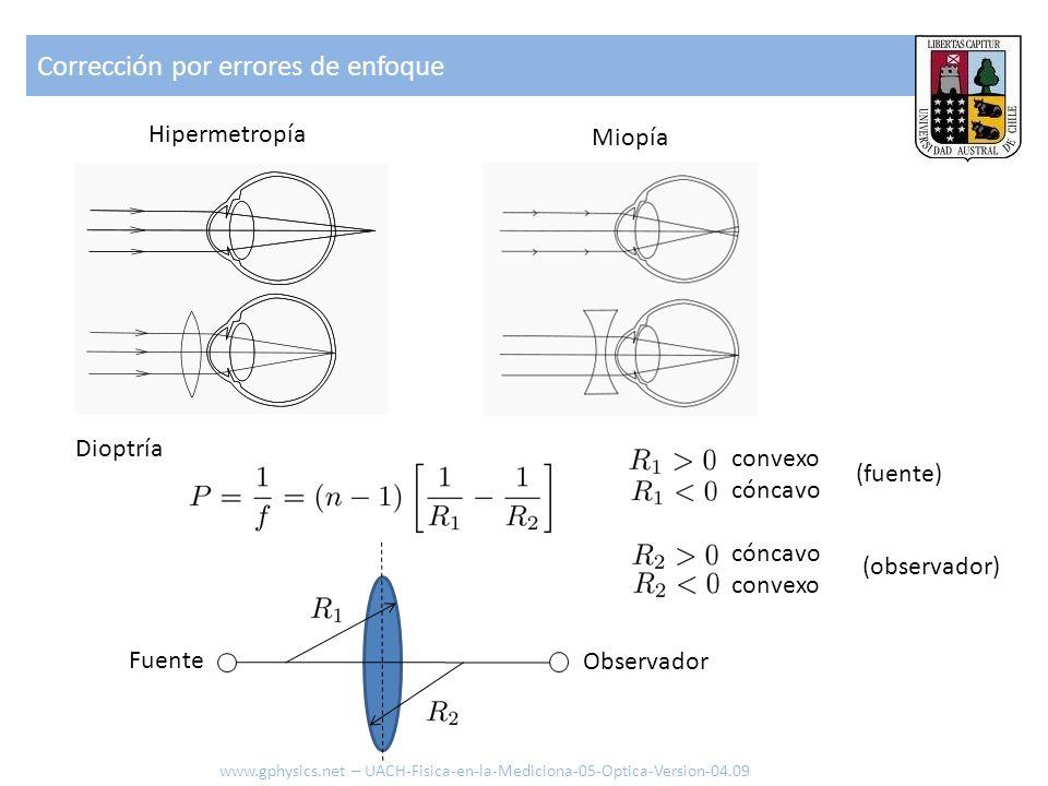 Corrección por errores de enfoque www.gphysics.net – UACH-Fisica-en-la-Mediciona-05-Optica-Version-04.09 Hipermetropía Miopía convexo cóncavo convexo