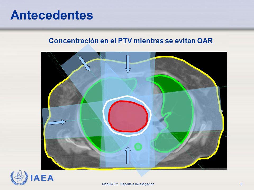 IAEA Módulo 5.2. Reporte e investigación9 Tratamiento deseado (vista en 2D) Antecedentes