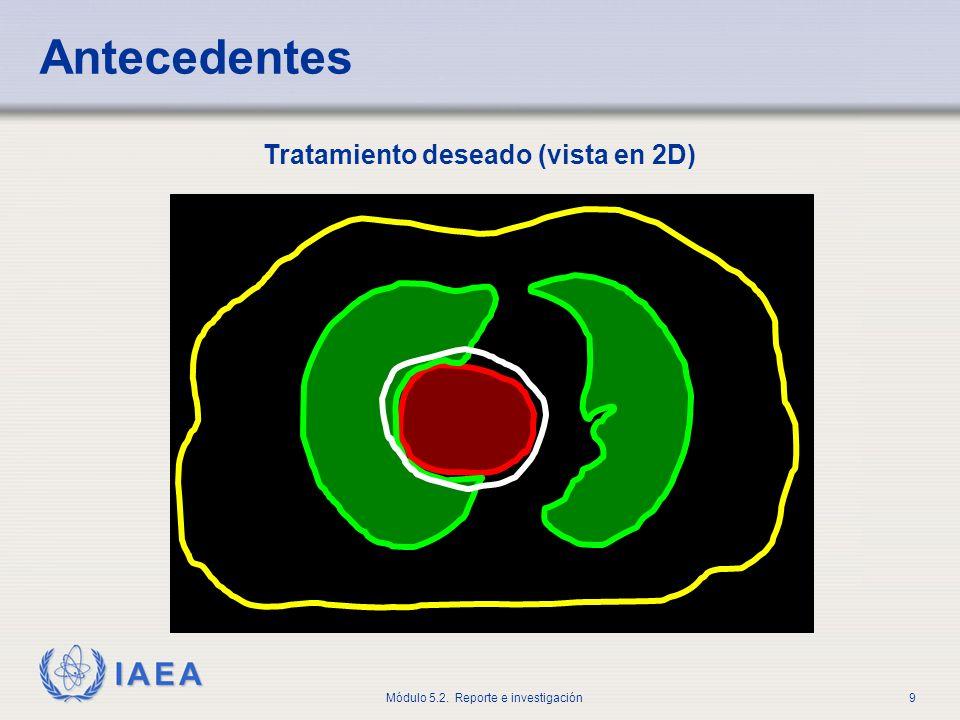 IAEA Módulo 5.2. Reporte e investigación10 Tratamiento deseado (vista en 3D) Antecedentes