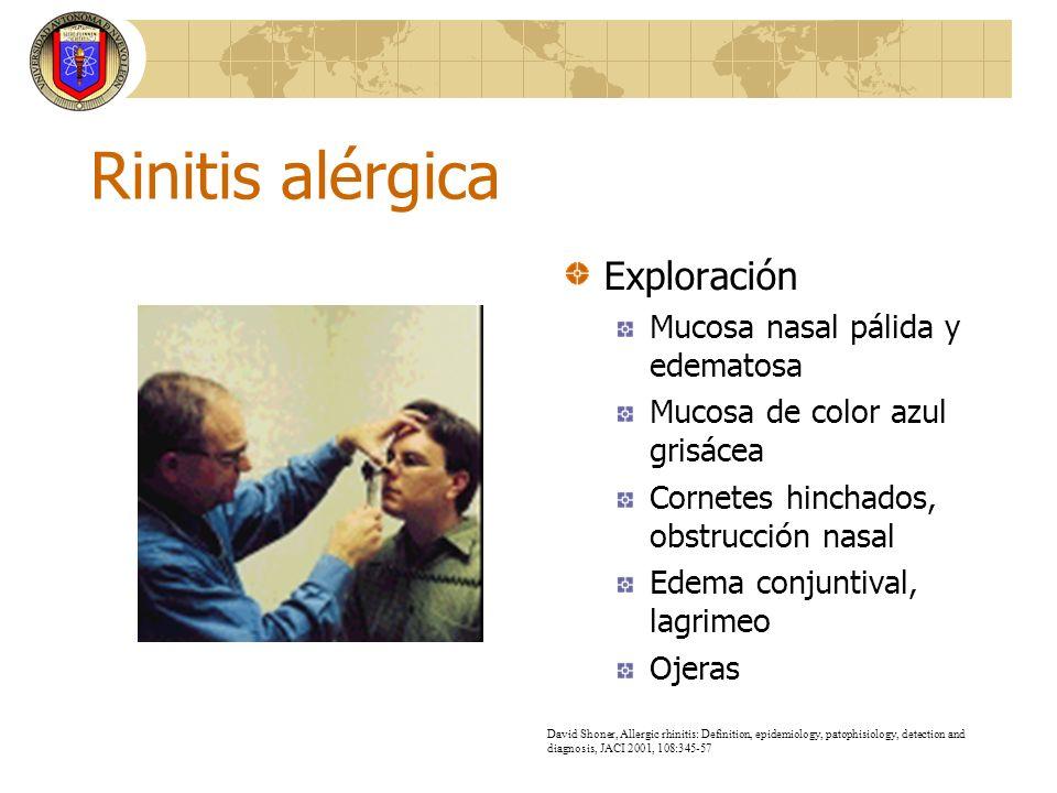 Rinitis alérgica Exploración Mucosa nasal pálida y edematosa Mucosa de color azul grisácea Cornetes hinchados, obstrucción nasal Edema conjuntival, la