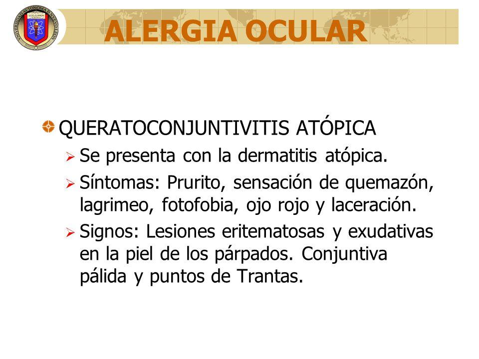 ALERGIA OCULAR QUERATOCONJUNTIVITIS ATÓPICA Se presenta con la dermatitis atópica. Síntomas: Prurito, sensación de quemazón, lagrimeo, fotofobia, ojo