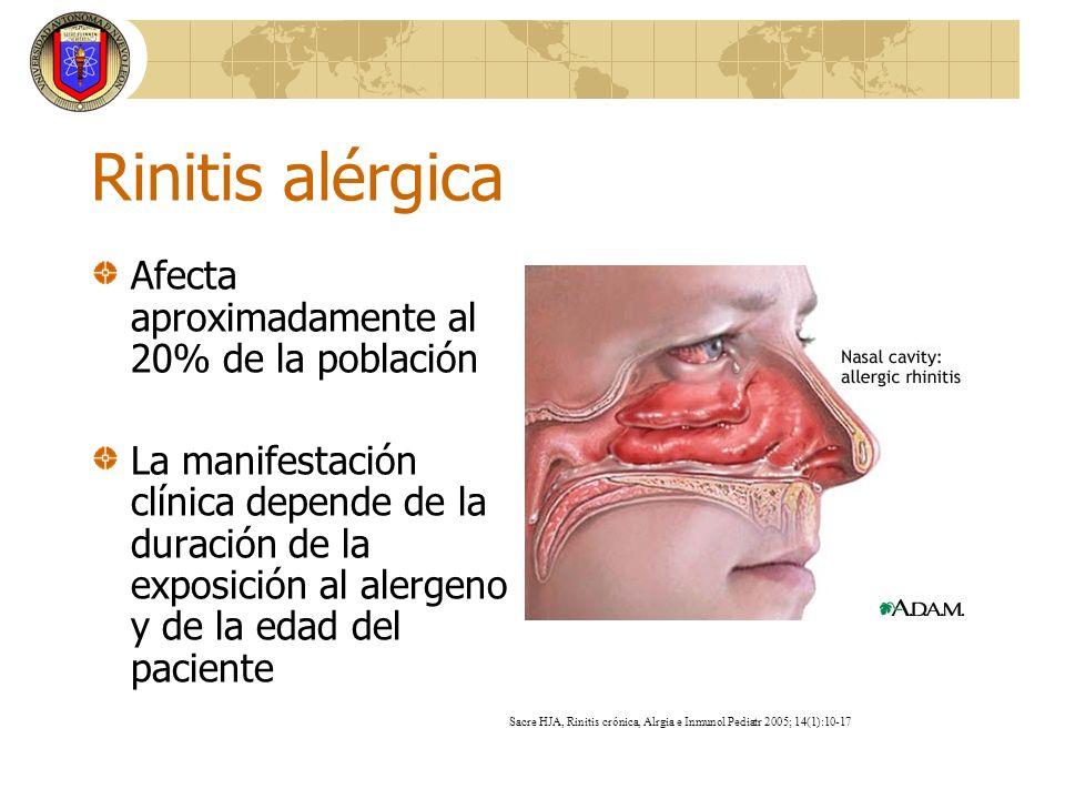 Estornudos Rinorrea Obstrucción Prurito Síntomas Nasal Nasal Oculares H1-antihistamínicos oral +++ +++ 0 a + +++ ++ intranasal ++ +++ + ++ 0 intraocular 0 0 0 0 +++ Corticosteroides intransal +++ +++ ++ ++ + Cromonas intranasal + + + + 0 intraocular 0 0 0 0 ++ Descongestivos intranasal 0 0 ++ 0 0 oral 0 0 + 0 0 Anti-colinérgicos 0 +++ 0 0 0 Anti-leucotrienos 0 + ++ 0 ++ Estornudos Rinorrea Obstrucción Prurito Síntomas Nasal Nasal Oculares H1-antihistamínicos oral +++ +++ 0 a + +++ ++ intranasal ++ +++ + ++ 0 intraocular 0 0 0 0 +++ Corticosteroides intransal +++ +++ ++ ++ + Cromonas intranasal + + + + 0 intraocular 0 0 0 0 ++ Descongestivos intranasal 0 0 ++ 0 0 oral 0 0 + 0 0 Anti-colinérgicos 0 +++ 0 0 0 Anti-leucotrienos 0 + ++ 0 ++ Tratamiento de Rinitis Alérgica