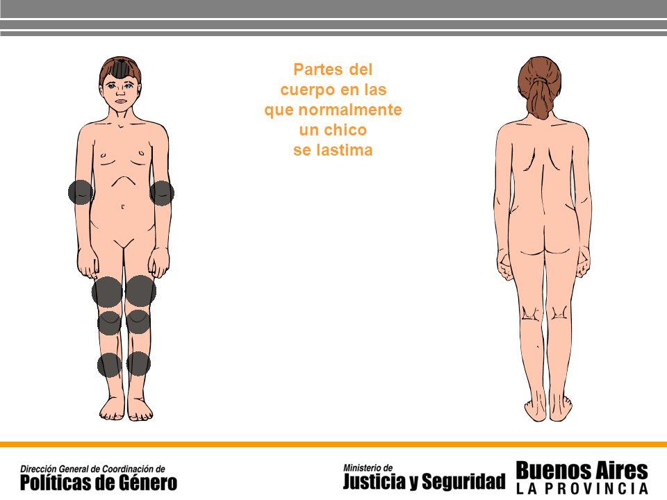 Partes del cuerpo en las que normalmente un chico se lastima