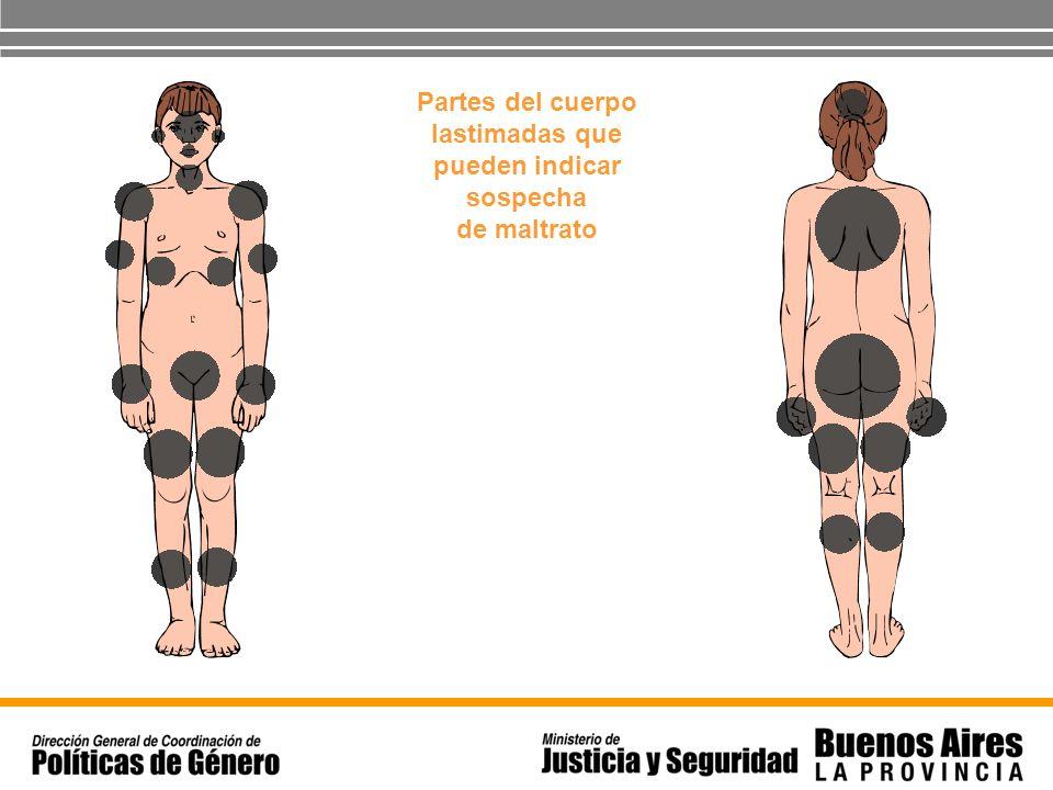Partes del cuerpo lastimadas que pueden indicar sospecha de maltrato