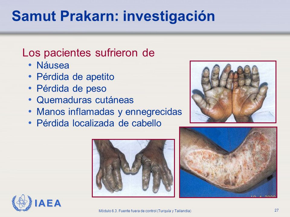 IAEA Módulo 6.3. Fuente fuera de control (Turquía y Tailandia) 27 Samut Prakarn: investigación Los pacientes sufrieron de Náusea Pérdida de apetito Pé