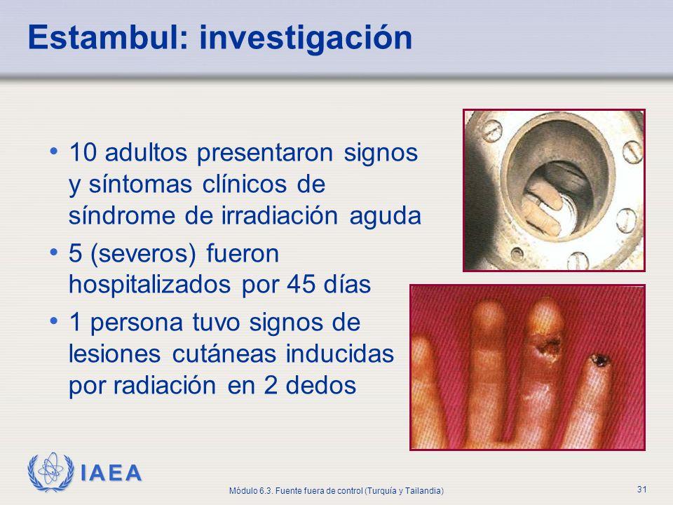 IAEA Módulo 6.3. Fuente fuera de control (Turquía y Tailandia) 31 Estambul: investigación 10 adultos presentaron signos y síntomas clínicos de síndrom