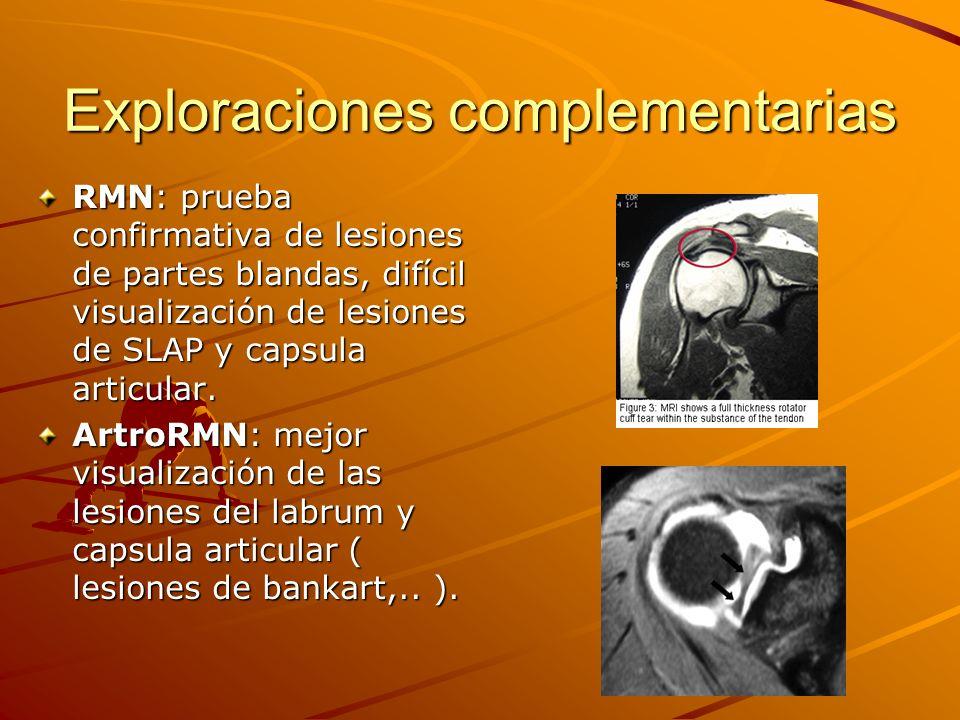 Exploraciones complementarias RMN: prueba confirmativa de lesiones de partes blandas, difícil visualización de lesiones de SLAP y capsula articular. A