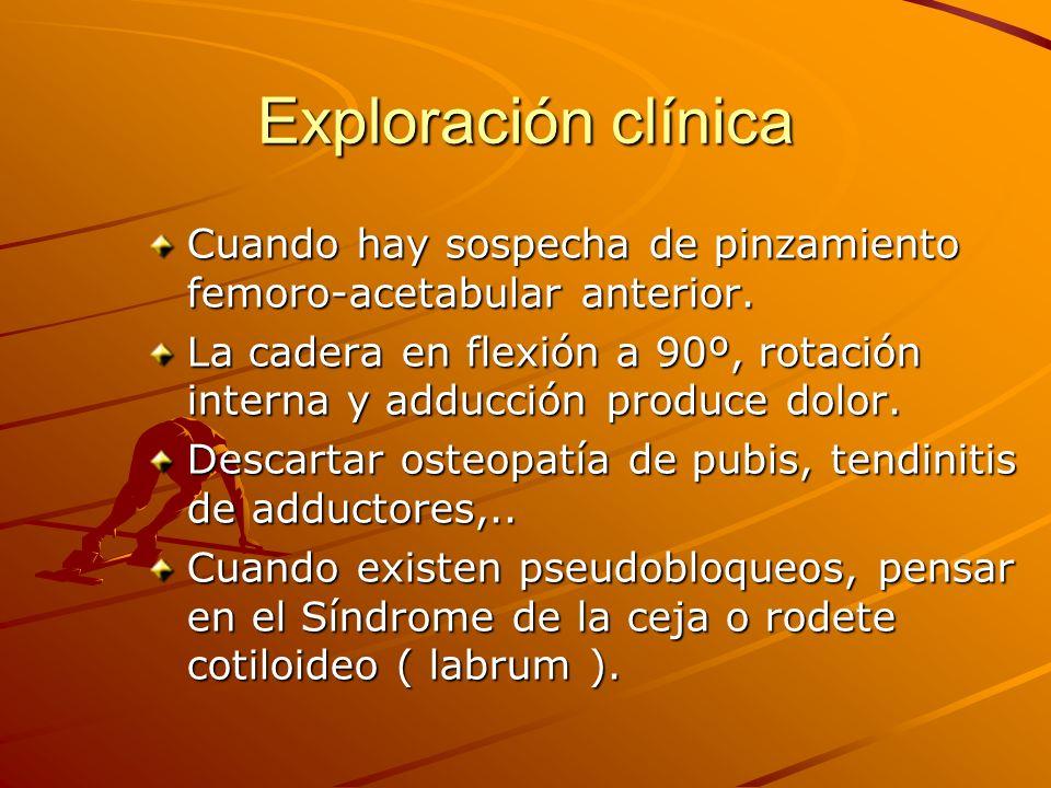 Exploración clínica Cuando hay sospecha de pinzamiento femoro-acetabular anterior. La cadera en flexión a 90º, rotación interna y adducción produce do