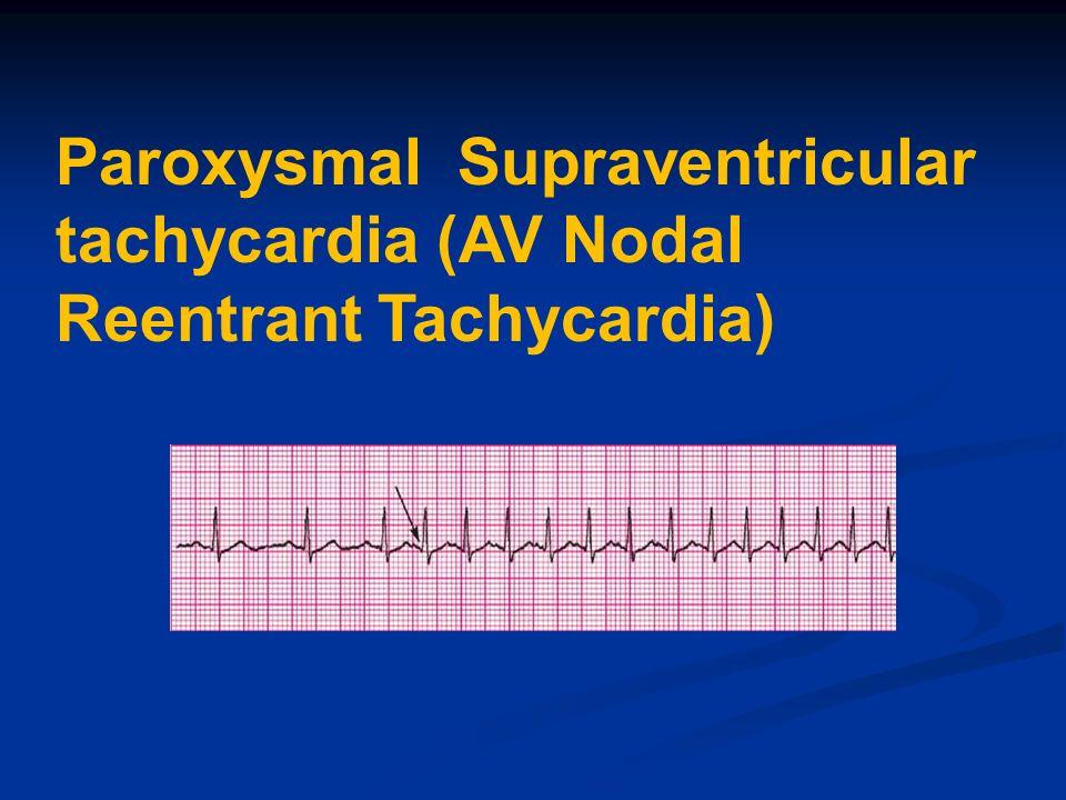 Paroxysmal Supraventricular tachycardia (AV Nodal Reentrant Tachycardia)
